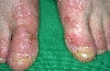 localisation: forefoot, diagnosis: Atopic Eczema