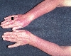 localisation: lower arms, diagnosis: Polymorphic Light Eruption