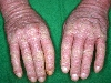 localisation: mains, diagnostic: Allergic Hand Eczema, Dermatite allergique de contact, aiguë et chronique, Dermatite de contact photoallergique