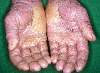localisation: paumes, diagnostic: Allergic Hand Eczema, Dermatite allergique de contact, aiguë et chronique, Dermatite de contact photoallergique