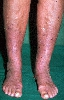 localisation: lower leg, feet, diagnosis: Stasis Dermatitis
