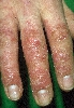 localisation: uña de los dedos de la mano, diagnóstico: Atopic Eczema of the Hands