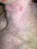 localisation: neck, diagnosis: Atopic Eczema