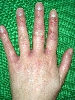 localisation: finger, interdigital region of the fingers, diagnosis: Allergic Hand Eczema, Allergic Contact Dermatitis, Acute & Chronic