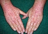 localisation: dos des mains, diagnostic: Atopic Eczema of the Hands