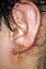 localisation: retro-auricular , lobule of auricle, auditory canal, diagnosis: Atopic Eczema
