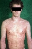 localisation: neck, elbow flexure, diagnosis: Atopic Eczema
