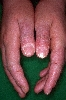localisation: hands, diagnosis: Allergic Contact Eczema Type I , Allergic Hand Eczema