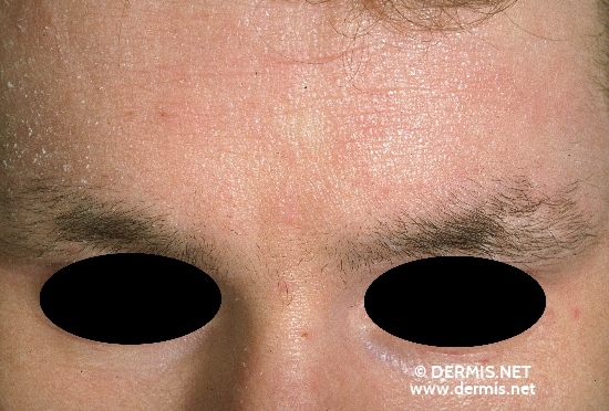 localisation: forehead lower eyelid diagnosis: Atopic Eczema