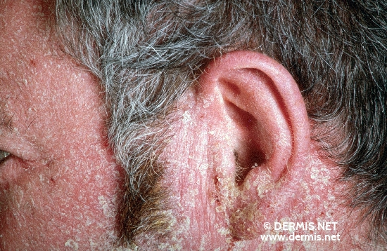 localisation: face ear diagnosis: Photoallergic Contact Dermatitis