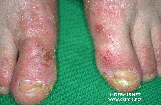 localisation: forefoot diagnosis: Atopic Eczema