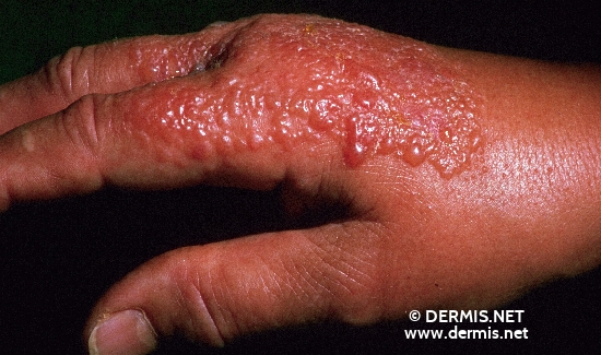 localisation: back of the hands diagnosis: Phototoxic Contact Dermatitis