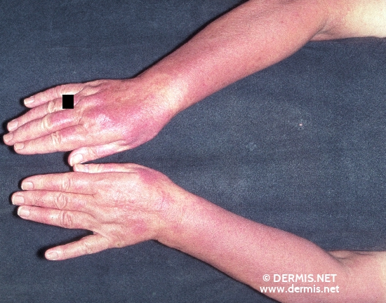 localisation: lower arms diagnosis: Polymorphic Light Eruption