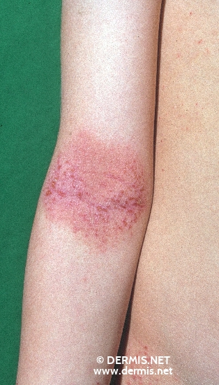 localisation: elbow flexure diagnosis: Atopic Eczema