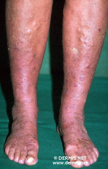 localisation: lower leg feet diagnosis: Stasis Dermatitis
