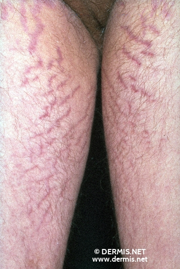 localisation: upper leg diagnosis: Striae Distensae