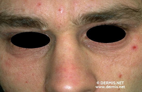 localisation: around the eyes lower eyelid diagnosis: Atopic Eczema