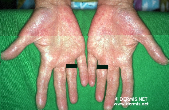 Juvenile Plantar Dermatosis - American Osteopathic College ...