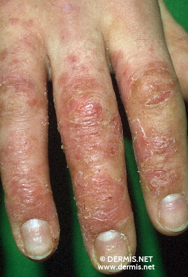 localisation: fingernail diagnosis: Atopic Eczema of the Hands
