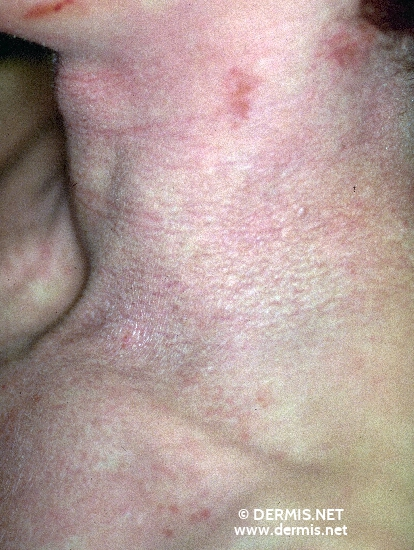 localisation: neck diagnosis: Atopic Eczema