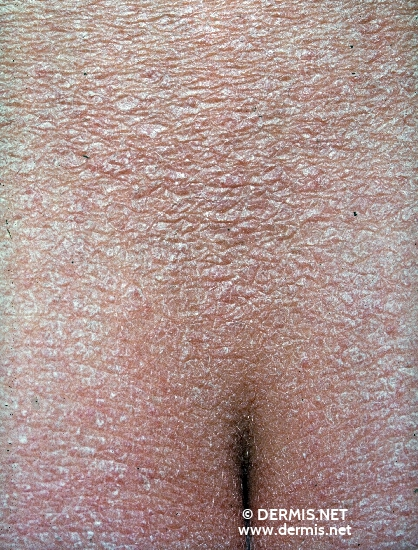 localisation: sacral region diagnosis: Ichthyosis Vulgaris