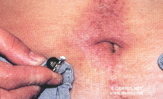 localisation: navel diagnosis: Allergic Contact Dermatitis, Acute & Chronic