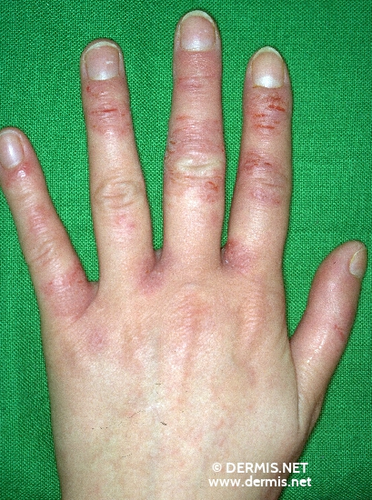 localisation: finger interdigital region of the fingers diagnosis: Allergic Hand Eczema Allergic Contact Dermatitis, Acute & Chronic