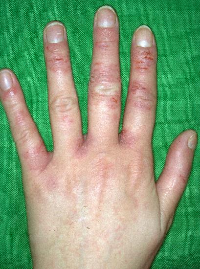contact dermatitis on hands irritants