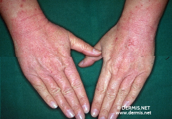 localisation: dos des mains diagnostic: Atopic Eczema of the Hands