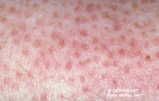 Diagnose: Keratosis pilaris