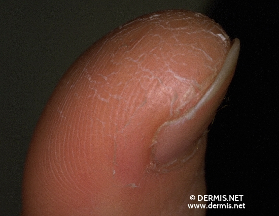 localisation: tip of the finger diagnosis: Atopic Eczema Dermatosis Palmoplantaris Juvenilis