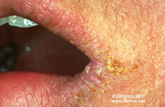 localisation: angle of the mouth diagnosis: Angulus Infectiosus Atopic Eczema