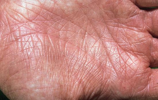 La sortie à atopitcheskom la dermatite chez les enfants