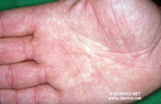 localisation: palms diagnosis: Atopic Eczema