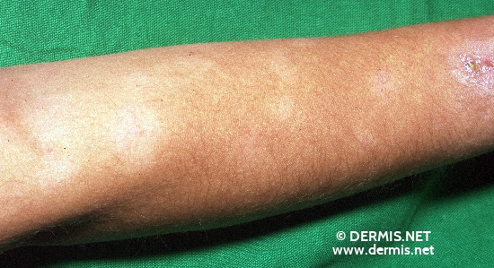 localisation: lower arms diagnosis: Pityriasis Alba
