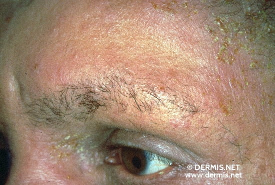 localisation: forehead angle of the eye diagnosis: Atopic Eczema