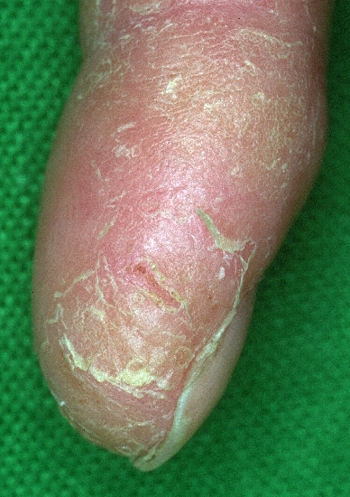 localisation: bout du doigt diagnostic: Juvenil plantar dermatosis Atopic Eczema of the Hands