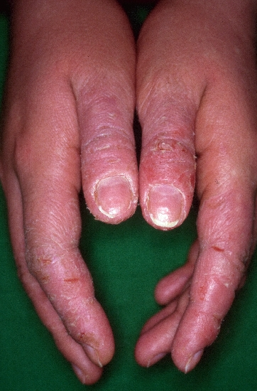 localisation: hands diagnosis: Allergic Contact Eczema Type I  Allergic Hand Eczema