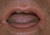 localisation: angle of the mouth, lower lip, tongue, diagnosis: Herpes Simplex Labialis, Angulus Infectiosus