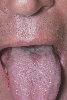 localisation: langue, diagnostic: Glossitis Mediana Rhombica