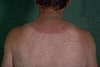 localisation: back of neck, diagnosis: Dermatitis Solaris, Cutis Rhomboidalis Nuchae