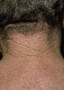 localisation: back of neck, diagnosis: Cutis Rhomboidalis Nuchae