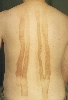 localisation: back, diagnosis: Berloque Dermatitis