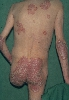 localisation: back, sacral region, elbow, diagnosis: Psoriasis Vulgaris, Chronic Stationary Type