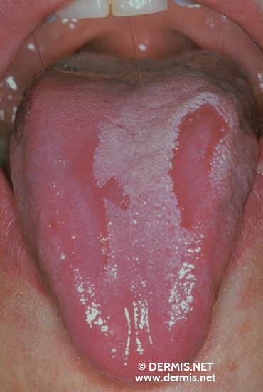 localisation: tongue diagnosis: Geographic Tongue