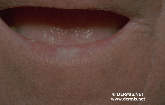 localisation: lower lip diagnosis: Actinic Cheilitis