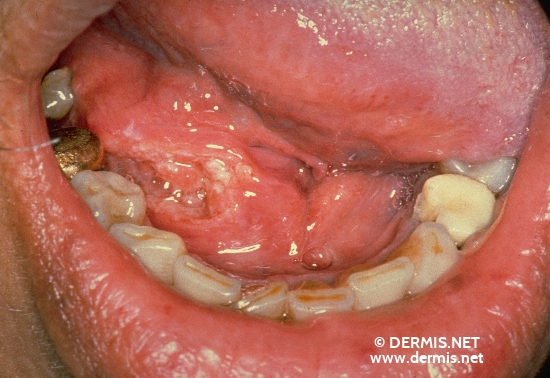localisation: floor of the mouth diagnosis: Floor of Mouth Squamous Cell Carcinoma