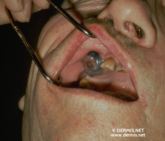 localisation: gingiva diagnosis: Nodular Melanoma (NM)