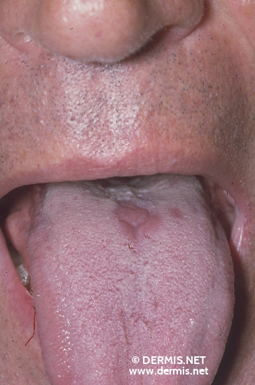 localisation: tongue diagnosis: Glossitis Mediana Rhombica