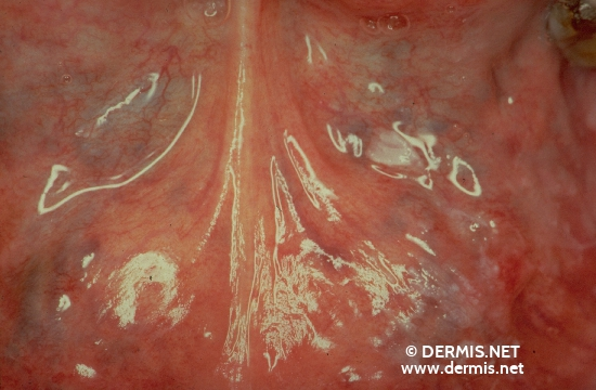 localisation: floor of the mouth diagnosis: Leucoplakia Praecancerosa